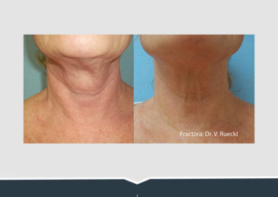 Fractora Neck Instagram
