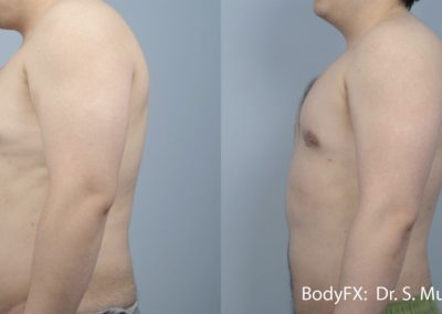 SM BODYFX 5a Male LS Preview