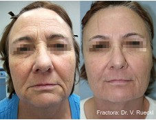 Body Sculpting FVR Fractora 2a 2tx 1stNeckLowerFace 2460pintip At 50 60mj 2nd 1 Month Later To Face With 2460pintip At 50mj 2fullpasses F57years Popup 227x175